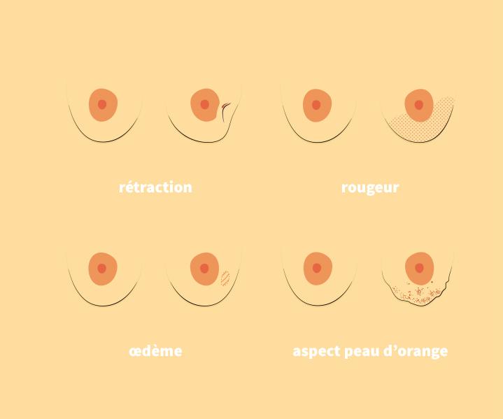 Une modification du mamelon ou de l'aréole