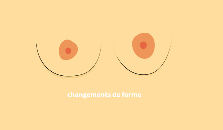Des changements de forme de vos seins